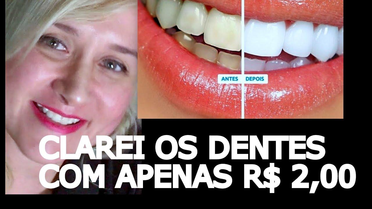 Como Clarear Os Dentes Em Casa Por R 2 00 Reais Apenas Youtube