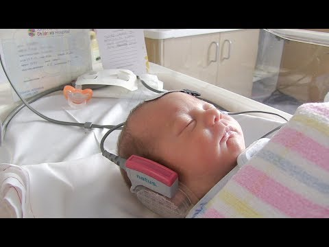 Hearing screening in NICU