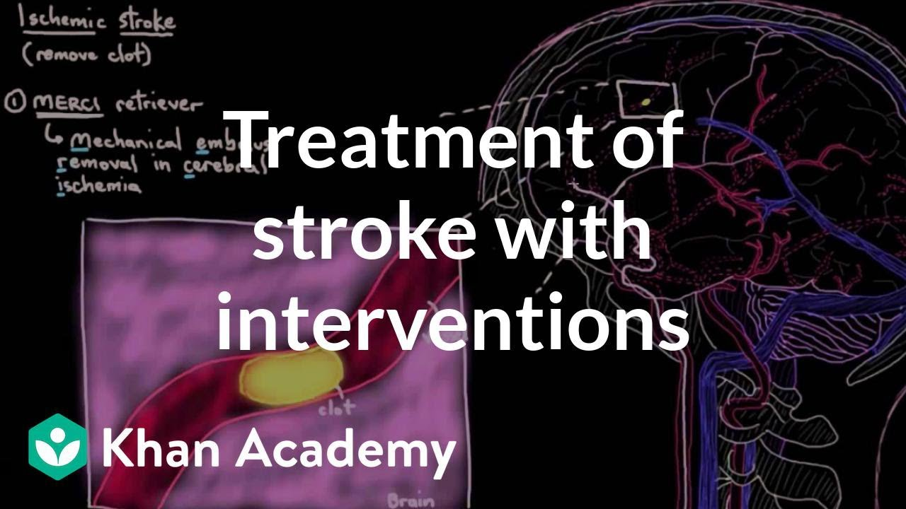 Treatment of stroke with interventions | Circulatory System and Disease | NCLEX-RN | Khan Academy