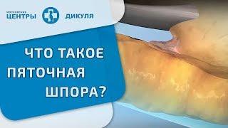 Пяточная шпора(Пяточная шпора представляет собой депозит кальция на нижней части пяточной кости. На рентгеновском снимке,..., 2014-02-25T18:01:48.000Z)