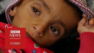 Саудий зарбалари ва Ямандаги энг ёмон очлик - BBC Uzbek