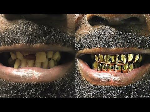 can you get gold teeth on chipped tooth???????