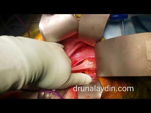 Kolon Kanseri Ameliyatı drunalaydin.com