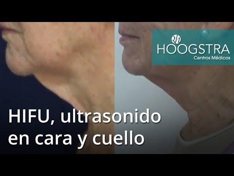 HIFU, ultrasonido en cara y cuello (18127)