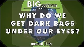 Why do we get dark bags under our eyes? - Big Questions - (Ep. 25)