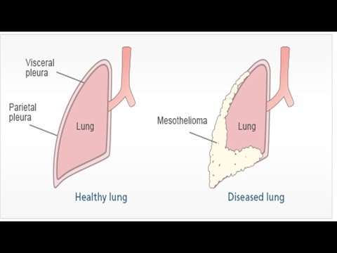 pleural-mesothelioma-|-asbestosis-symptoms-and-treatment-|-malignant-peritoneal-mesothelioma