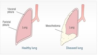 Pleural Mesothelioma | Asbestosis Symptoms and Treatment | Malignant Peritoneal Mesothelioma