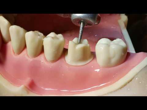 Molar Crown Preparation Walkthrough (tutorial) in the Simulation Lab
