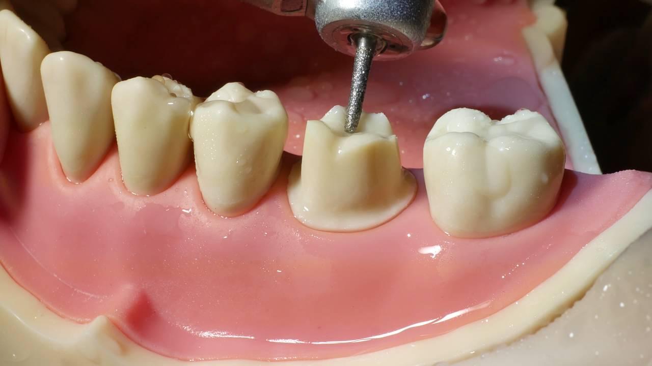 Molar Crown Preparation Walkthrough Tutorial In The