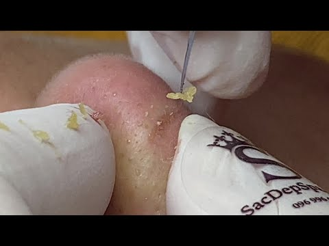 Ugly Pimples Acne Zit And Blackheads On The Nose | Mụ Mũi - SacDepSpa#149