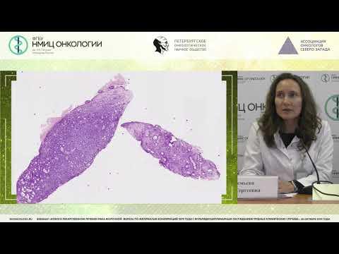Трудные случаи патоморфологической и иммуногистохимической диагностики рака молочной железы