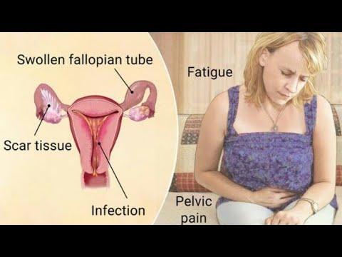 Summary of Pelvic Inflammatory Disease (PID)