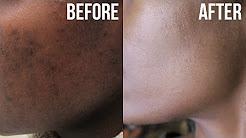 hqdefault - Can Acne Cause Dark Spots