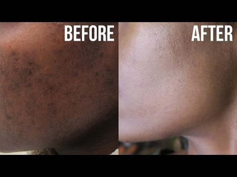 hqdefault - Skin Discoloration Caused By Acne