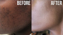 hqdefault - How Do You Get Rid Of Acne Brown Spots