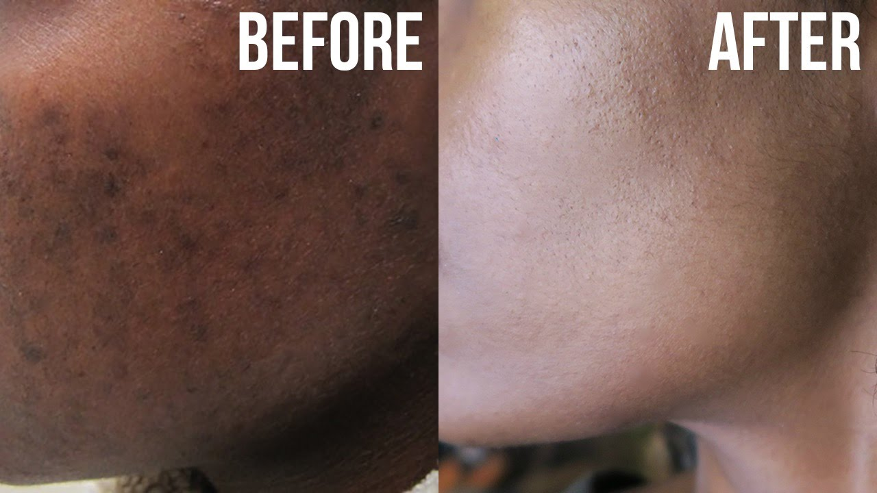 Get Rid Of Acne Hyperpigmentation Dark Spots