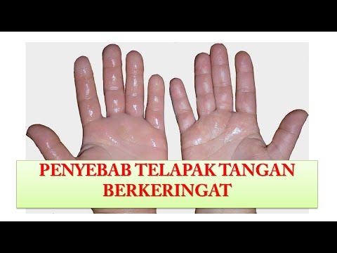 Penyebab Telapak Tangan Berkeringat