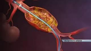 Операции по эндопротезированию брюшной и грудной аорты начали делать алтайские врачи