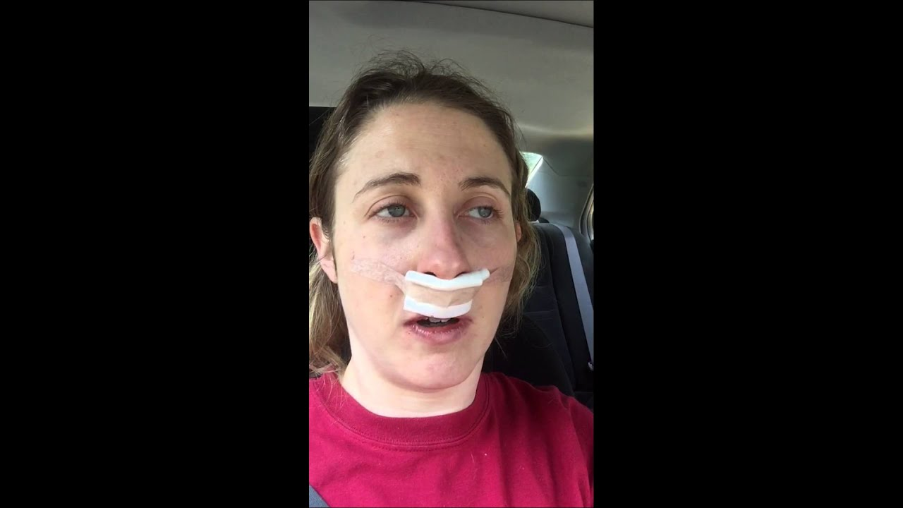 30 minutes after Septoplasty and bilateral Turbinate ...