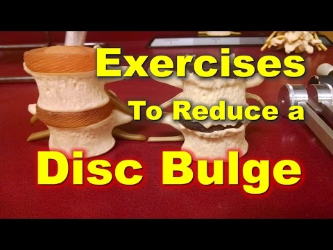 Heal Your Bulging Disc Daily Exercise Regimen Youtube