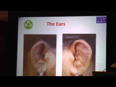 Dr. Aman Sharma Lecture IACMCON 2015 Conference