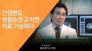간경변도 생활습관 고치면 치료 가능하다 - (2011.…