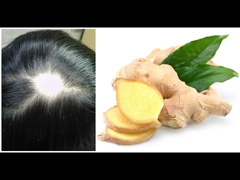 Ginger Juice to Cure Baldness & Regrow New Hair | Sushmita's Diaries