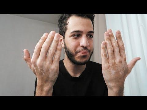 Что с руками? Я болен?   Разговорное видео
