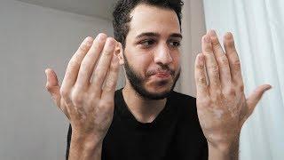 Что с руками? Я болен? | Разговорное видео
