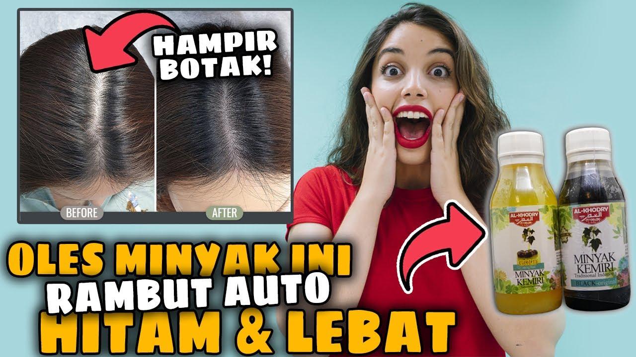 Luar Biasa 5 Manfaat Minyak Kemiri Al Khodry Penumbuh Rambut Paling Ampuh Atasi Kebotakan Youtube