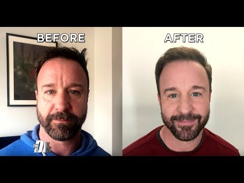 Men Need Skincare Too Omg Serum Undereye Recovery Mask Youtube