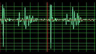 Minor Cardiomyopathy- normal speed