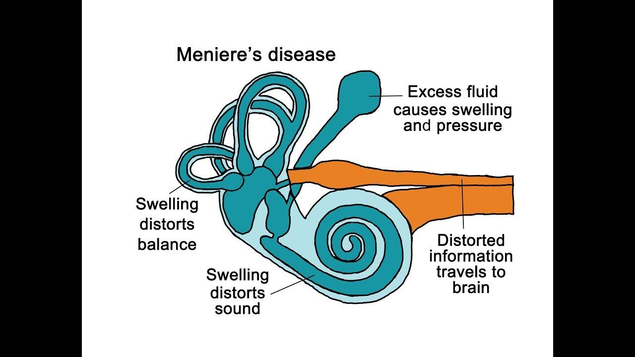 Meniere S Disease Youtube