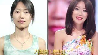 dokter bedah plastik orang korea terbaik : Sebelum dan Sesudah Operasi Plastik Korea