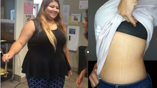 stretch marks before and after major weight loss