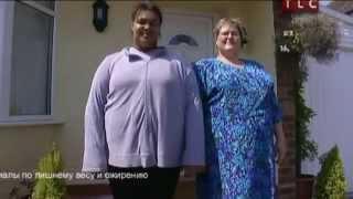 Дети с ожирением, бариатрическая хирургия