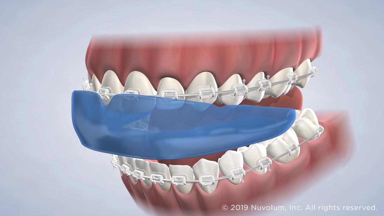 Braces at Warren Orthodontics in Springville, UT