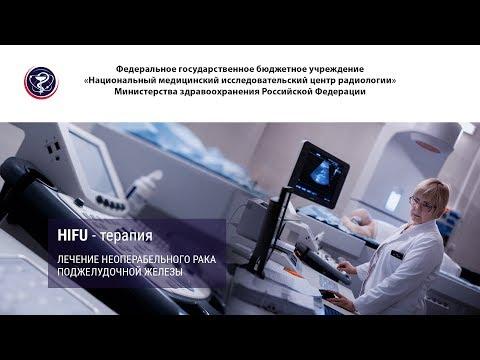 HIFU-терапия - современный высокоэффективный метод лечения неоперабельного рака поджелудочной железы
