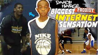 He Was The Biggest INTERNET Sensation! What Happened To DAMON HARGE? Stunted Growth