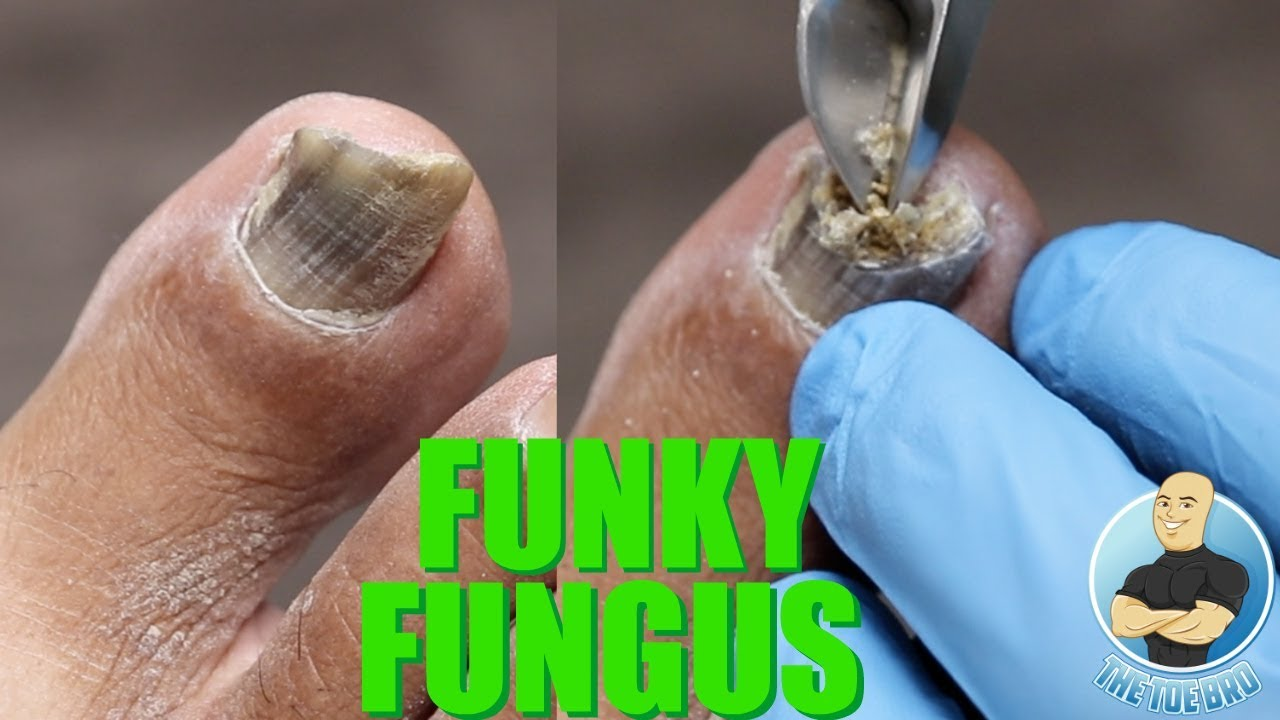 HAVE NAIL FUNGUS? YOU NEED TO BE DOING THIS!!!! ***SUPER IMPORTANT TIP***