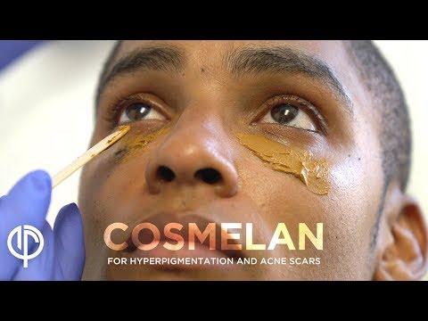 Cosmelan Treatment for Acne Scars & Hyperpigmentation by Dr. Jason Emer | Melasma Treatment