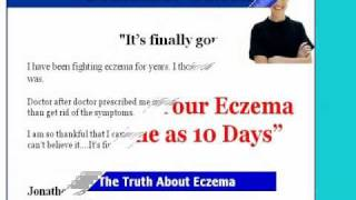 Eczema -eczema blisters - It's for you! Thumbnail