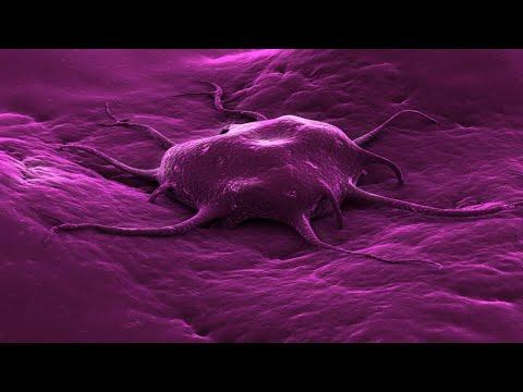 Antígenos tumorales. Conferencia del Dr. Peter Taylor. U1 L1