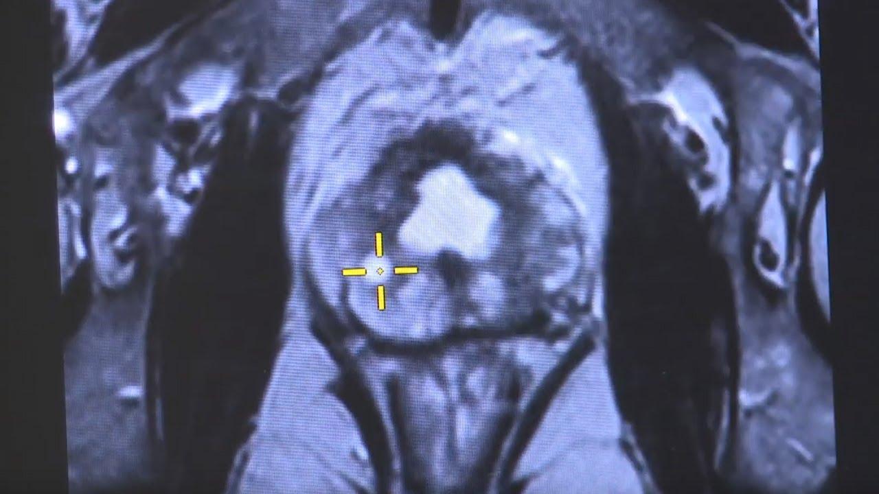 Resonancia magnética multiparamétrica de la próstata koelliker