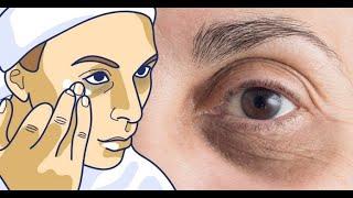 Deshidratación los ¿La causa círculos debajo ojos? de