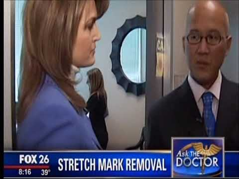 Fox 26 - Ask The Doctor - how to remove stretch marks