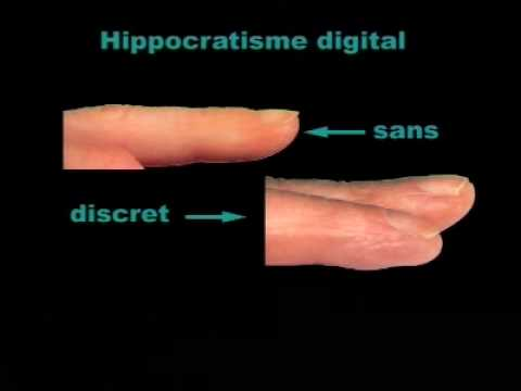 Inspection Reconna U00eetre Un Hippocratisme Digital