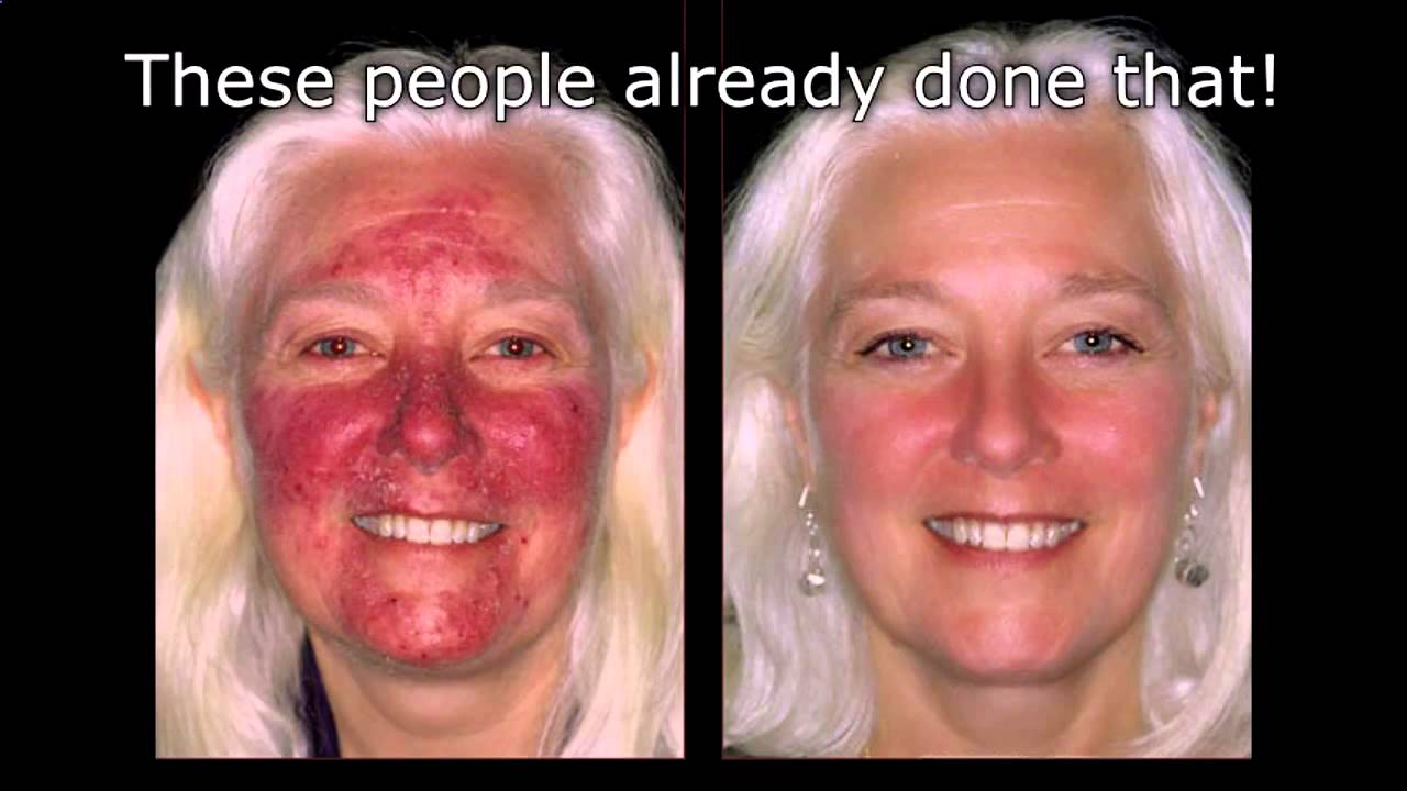 Blue Light Acne Treatment [Blue Light Therapy For Acne ...