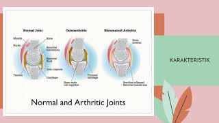 Osteoarthritis - pengapuran sendi, penyakit sendi yang bersifat kronik. Bisa muncul karena pernah ci.