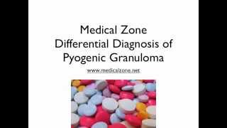 Medical Zone - Differential Diagnosis of Pyogenic Granuloma